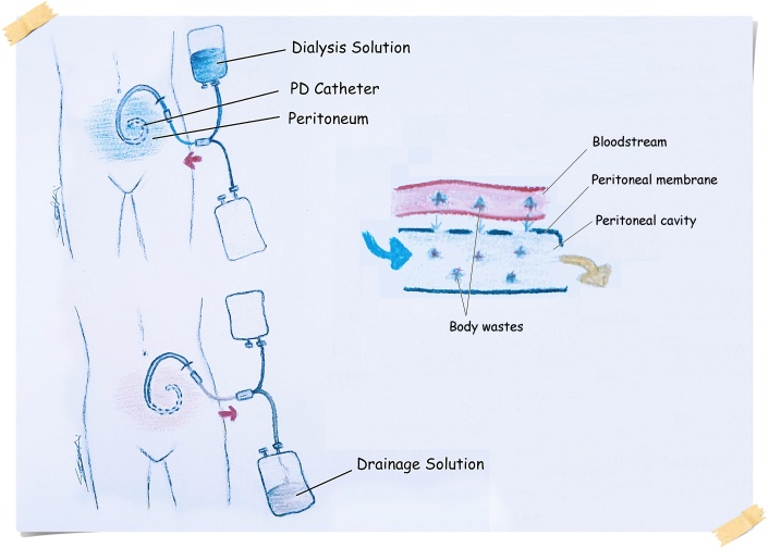 PD catheter process with legends with post it2.jpg