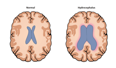 hydrocephalus_ventricles-difference-compressor