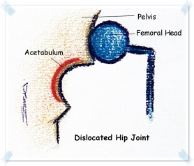 dislocated hip joint new.JPG