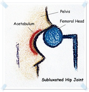 subluxated hip joint new.JPG