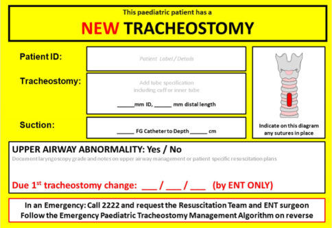 paediatric patient - new trach tube sign